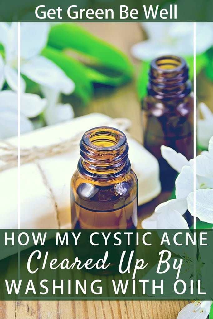 How Oil Based Cleansers Cleared Up My Cystic Acne